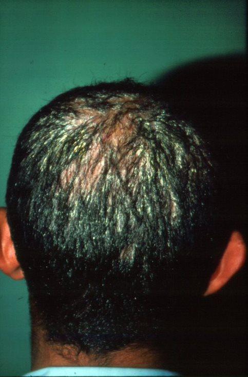 saç mantarı